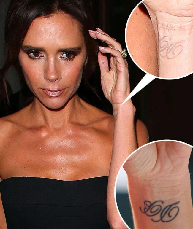 Виктория Бекхем стирает татуировки